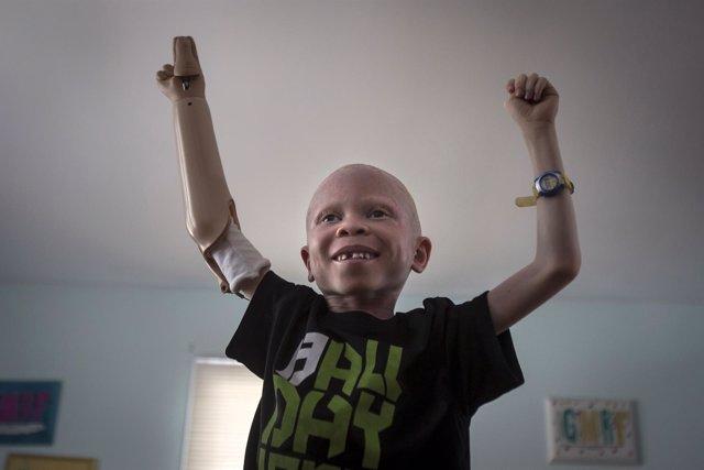 Niño tanzano con albinismo trasladado a Nueva York