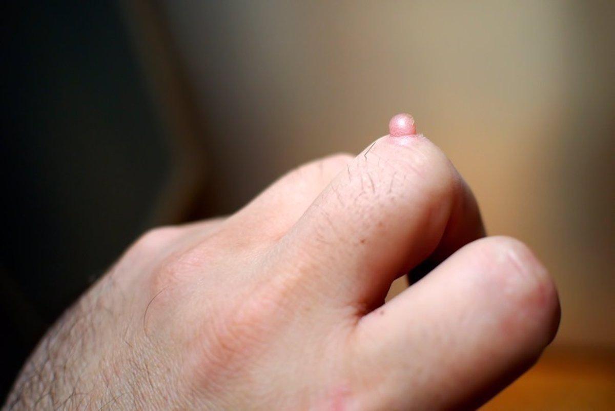 Ce trebuie făcut dacă papiloamele cresc sub axile - Papilomul crește pe gât ce trebuie făcut