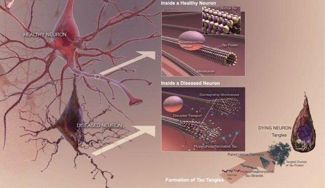 Enzimas en el cerebro