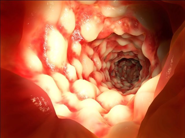 Colonoscopia cáncer de colon