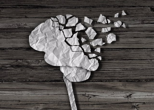Demencia, cerebro, alzheimer