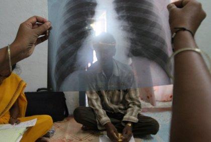 La tuberculosis mata a 5.000 personas cada día