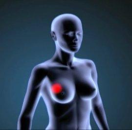 """Prueban """"con éxito"""" un nuevo medicamento para curar el cáncer de mama"""
