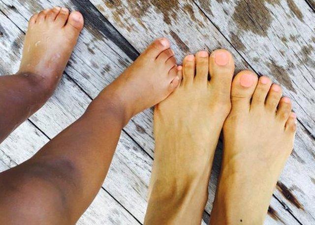 La sensación de pies frios durante todo el año puede ser sinónimo de enfermedad