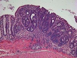 La cirugía del cáncer de colon se puede practicar en más del 80% de las ocasiones por laparoscopia