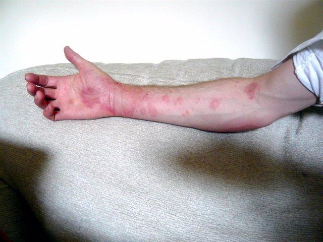 Urticaria, brazo, piel, enfermedad