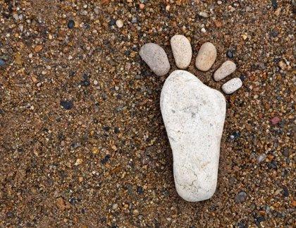 Los pies planos se pueden heredar y ¿duelen?
