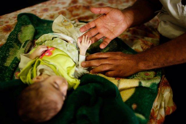 Un niño iraquí con síntomas de desnutrición en Mosul