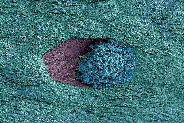 Bacterias vaginales pueden desencadenar infecciones urinarias recurrentes