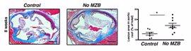 Expertos del CNIC descubren que las células marginales B tienen un efecto protector frente a la aterosclerosis