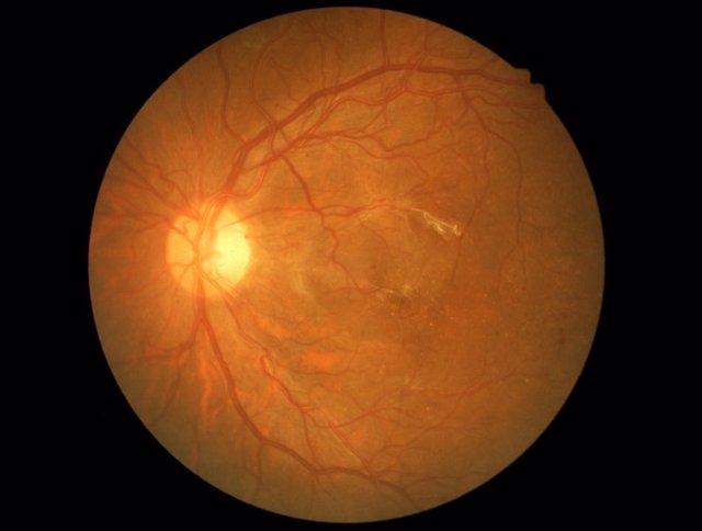 Glaucoma, ojo