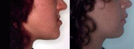 La cirugía ortognática permite tratar la apnea del sueño y resolver alteraciones de la oclusión dental