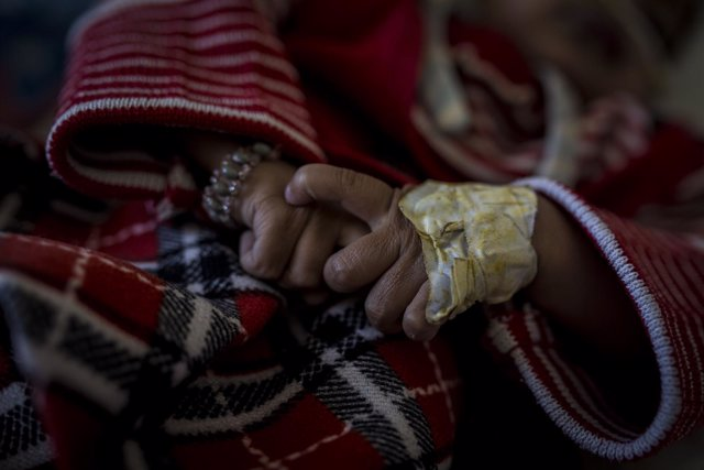 Mano de niña con desnutrición en Yemen