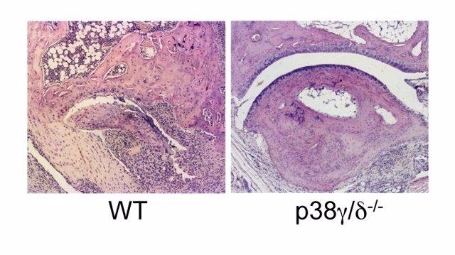 Ratones que carecen de p38?/d están protegidos frente al daño articular