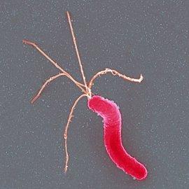 Ferrer lanzará al mercado el test de Otsuka para el 'Helicobacter pylori'