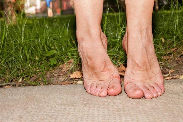 Pies descalzos, gota