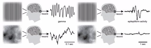 Imágenes que provocan epilepsia
