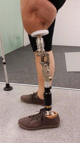 El Hospital de Mataró conecta una prótesis directamente a un fémur amputado