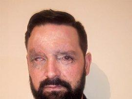 Defensa no tendrá que indemnizar a uno de los militares heridos en Hoyo en 2011