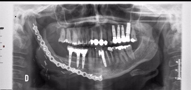 Reconstrucciones mandibulares más precisas con tecnologías 3D