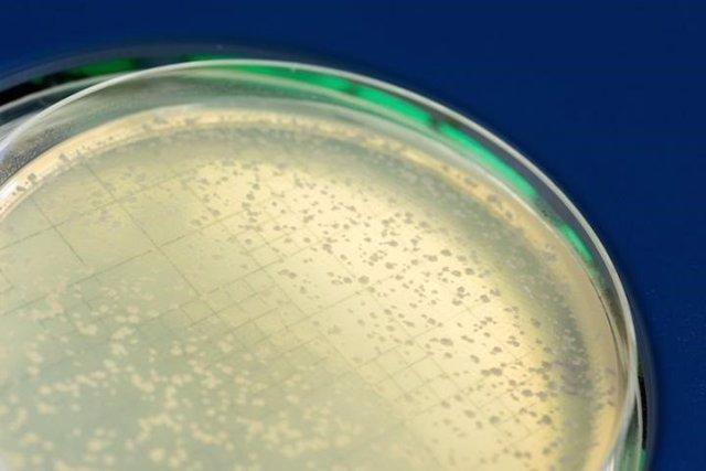 Placa de Petri con colonias de levadura, hongos