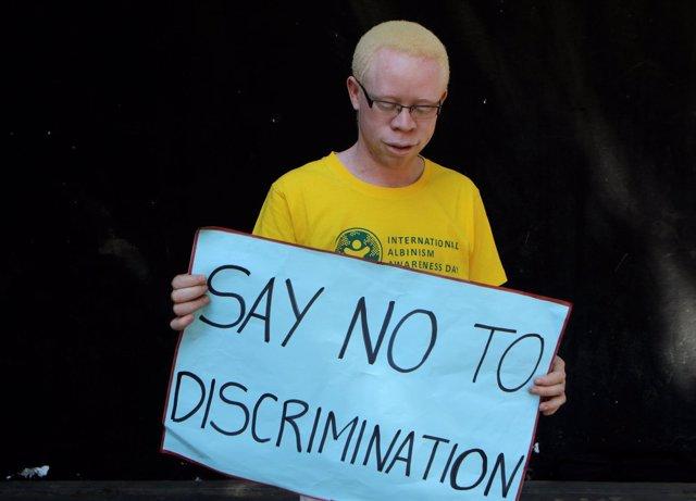 Un albino con una pancarta contra la discriminación en Harare