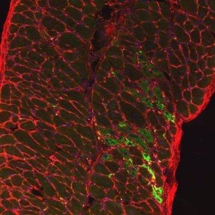 Un medicamento dirigido sin éxito para el cáncer, potencial tratamiento para la Distrofia Muscular de Duchenne