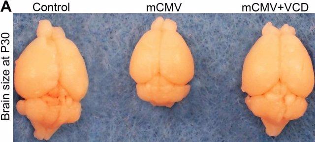 Una medicación protege el cerebro del ratón de defectos de nacimiento