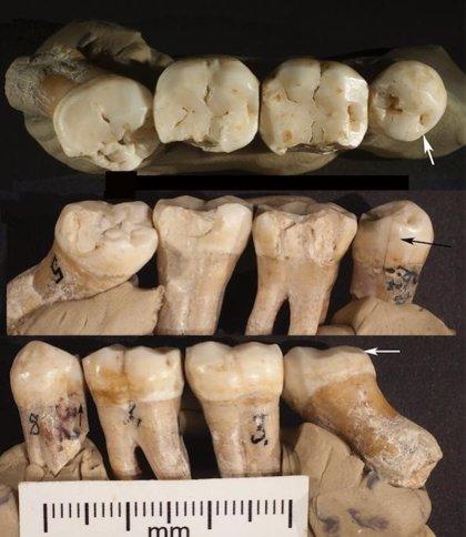 Revelan evidencias de odontología prehistórica en los neandertales