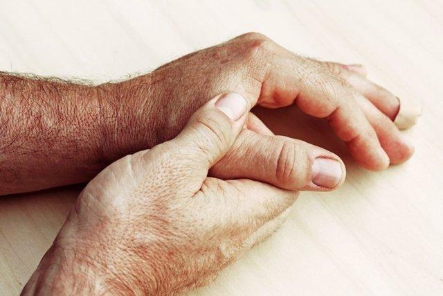 Manos, scleroderma, esclerodermia