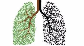 Extremadura es donde más baja el riesgo de muerte por cáncer de pulmón en hombres