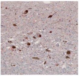 Alzheimer y Parkinson, estimuladas por la misma enzima