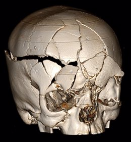 Lesión cerebral traumática asociada con demencia