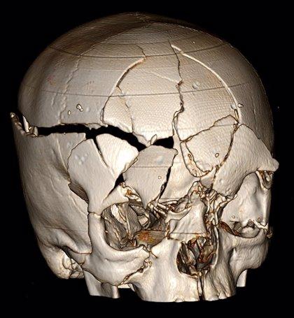 El riesgo de demencia es mayor tras una lesión cerebral traumática