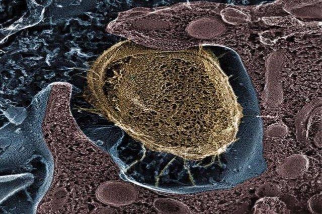 Señuelo molecular para reducir infecciones urinarias frecuentes
