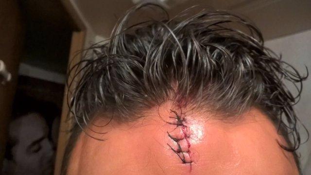 Lesiones causadas al dueño de un circo en Silleda (Pontevedra).