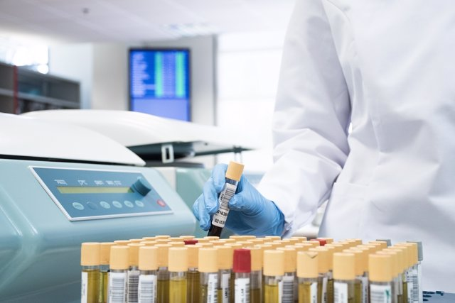 La Dgt Amplía El Número De Test De Control De Drogas, Que Realiza Synlab