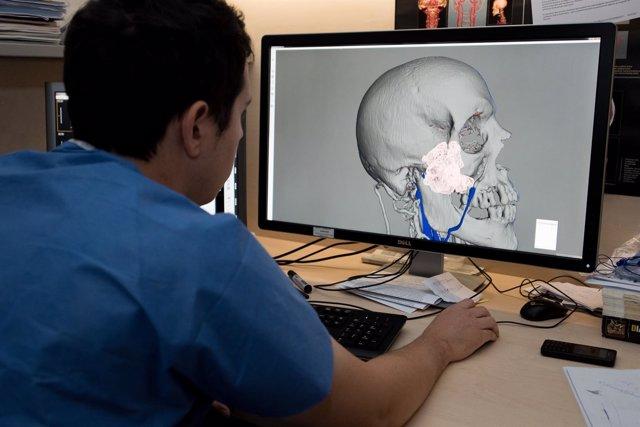 Impresión 3D para planificar intervenciones en el Hospital Clínic