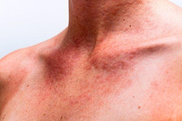 Alergia al sol, piel