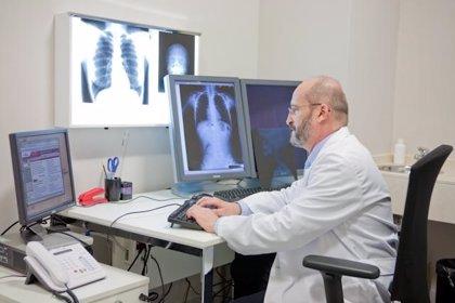 Un 3% de los pacientes con cáncer de pulmón tiene mutaciones en el gen HER2