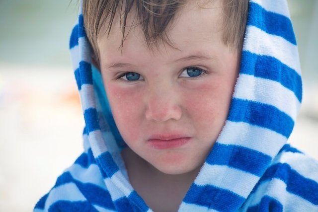 Dermatitis atópica, niño, playa