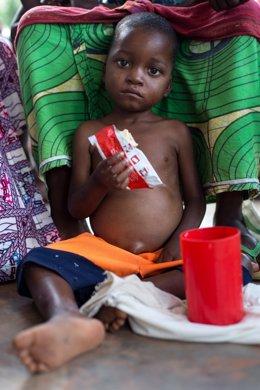 Un niño aquejado de malnutrición en la región de Kasai