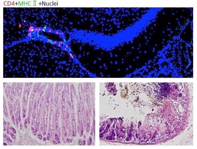 Microinflamación en zonas específicas del cerebro