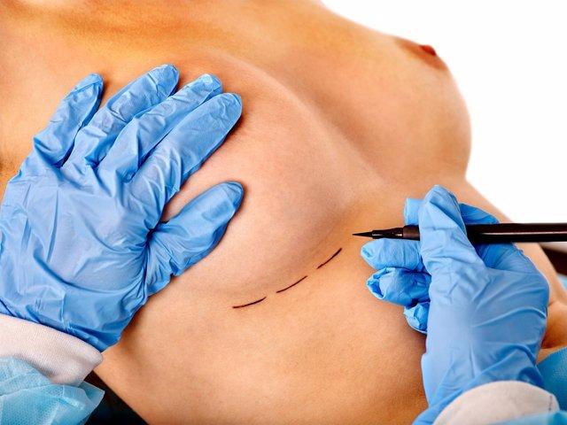 Especialista marcando la zona donden se realizará la cirugía