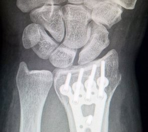 Desarrollan un método basado en nanotecnología para analizar la regeneración ósea (EUROPA PRESS/FUNDACIÓN DESCUBRE. )