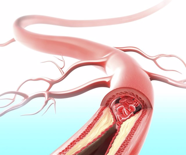 Ateroscleroris, ateroma, placa en las arterias, colesterol