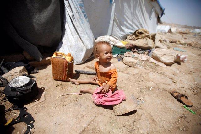 Niño afectado por el conflicto en Yemen