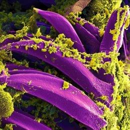 Bacteria de la peste, Yersinia pestis