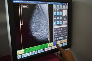 Un estudio identifica los pacientes de cáncer de mama para un tratamiento preventivo de metástasis (EUROPA PRESS)