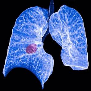 Demuestran mayor supervivencia al combinar cirugía y quimioterapia en cáncer de pulmón (ATS)